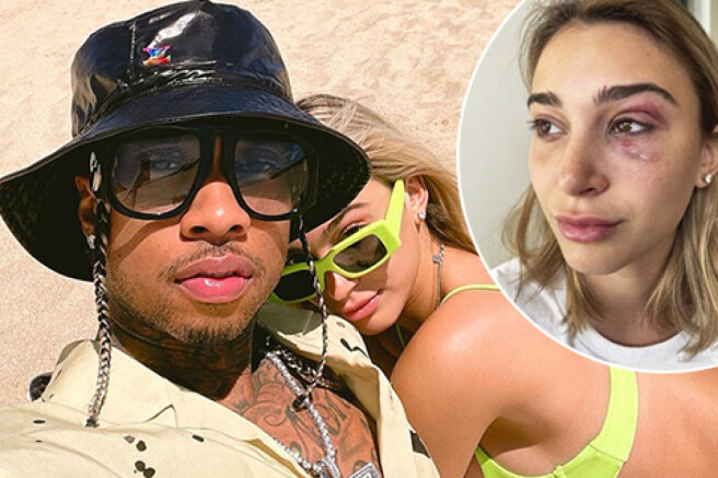 Kylie Jenner's ex-boyfriend rapper Tyga accused of domestic violence