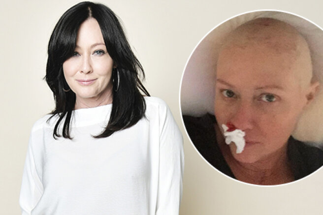"""Shannen Doherty spoke about the fight against the last stage of cancer: """"It's ugly, but true"""""""